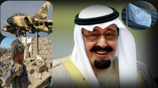 106غیر نظامی یمنی در  یک ماه گذشته کشته شدند