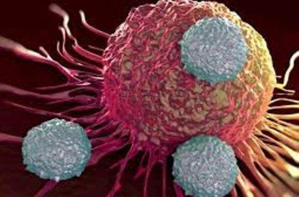آشنایی با انواع سرطان و علائم آن