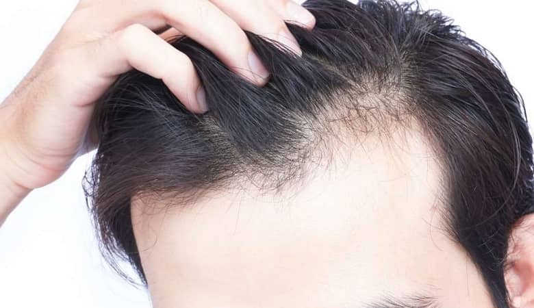 طب سنتی چه راهکارهایی جهت جلوگیری از ریزش مو دارد؟