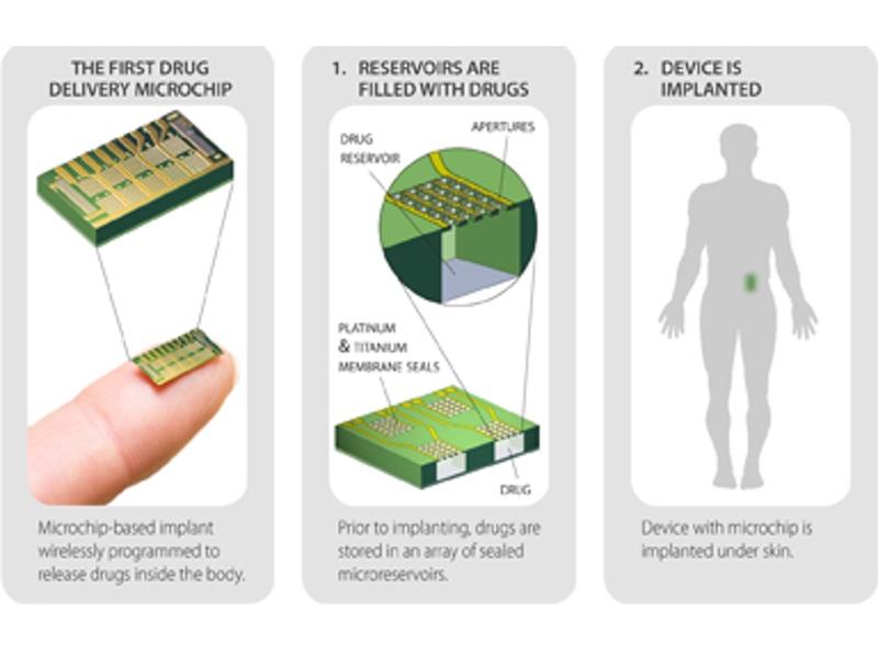 میکروچیپ چیست؟
