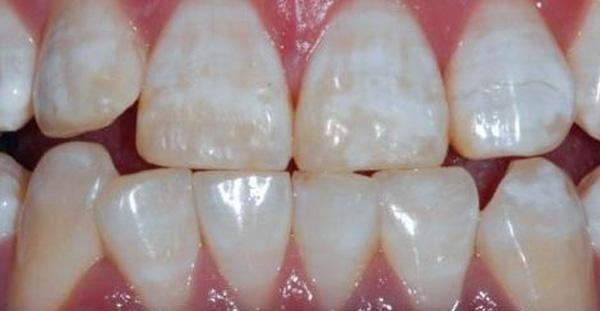 علت شکستن ناگهانی دندان چیست؟