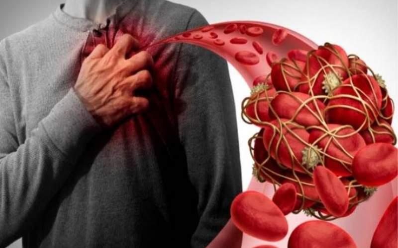 لخته خون چه کسانی را تهدید میکند؟