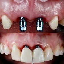 دست بی نمک دندانپزشک و پای لنگ تولید
