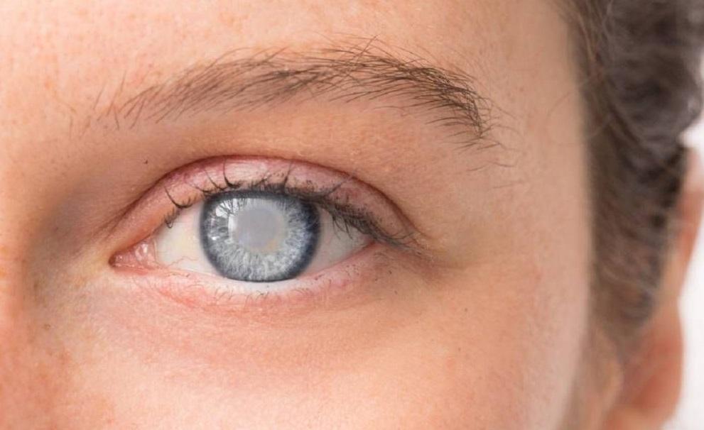نشانه های بیماری چشم