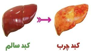 علائم شایع کمبود پروتئین در انسان
