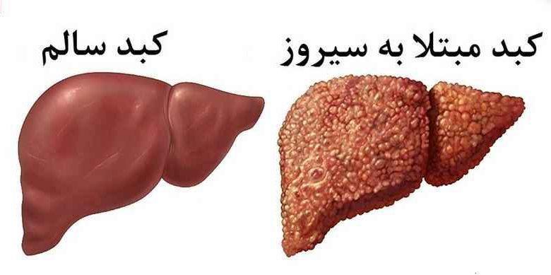 علل بیماری کبد