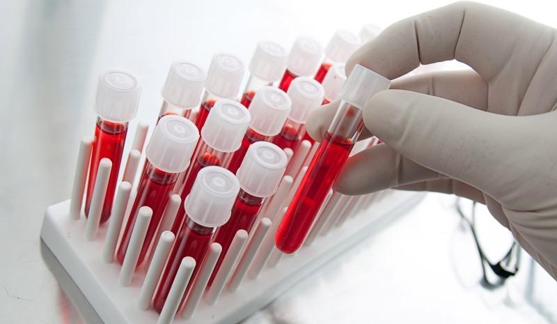 خواندن راحت جواب آزمایش خون