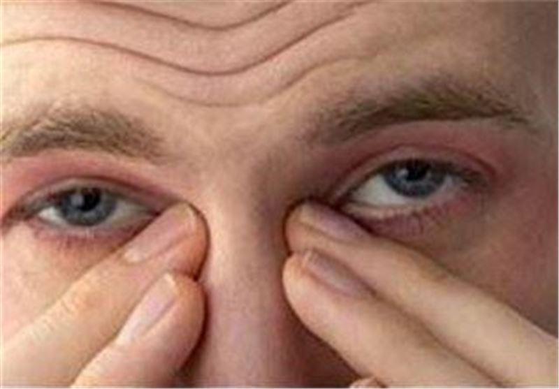 احساس سوزش در بینی نشانه چیست؟ آیا به کرونا ربطی دارد؟