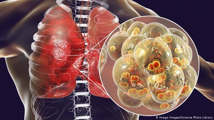 علائم درگیر شدن ریهها با کرونا چیست؟