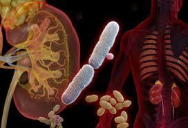 عفونت دستگاه ادراری و کلیوی