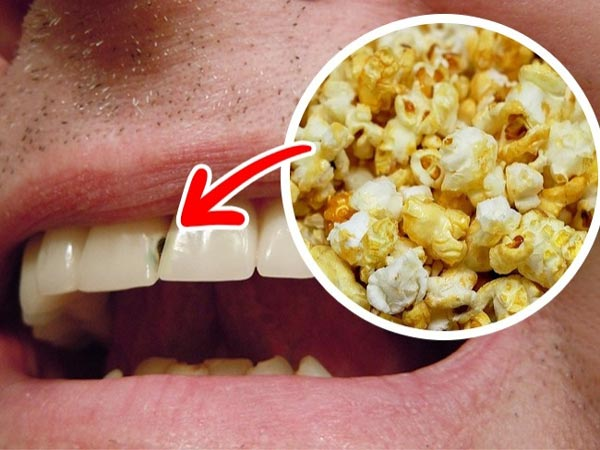 کدام مواد غذایی به دندان آسیب میزنند؟