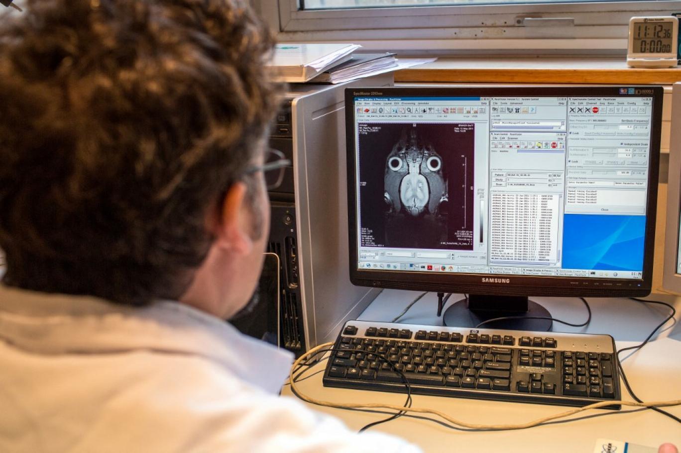 اتصال مغز به کامپیوتر بدون سیم!