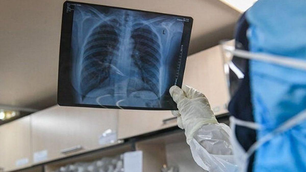 چگونه بفهمیم ریههای ما درگیر کرونا شده است؟